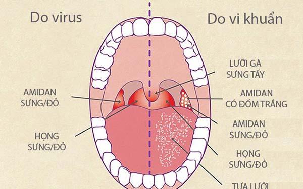 Viêm amidan do vi khuẩn và virus