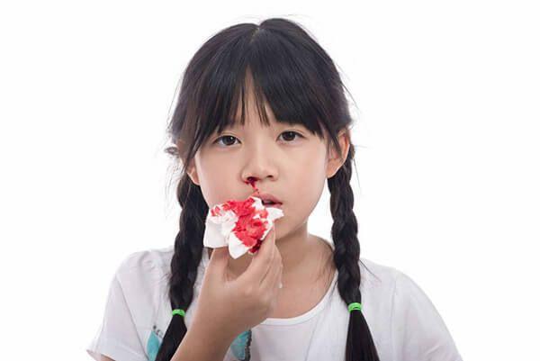 Trẻ em bị chảy máu mũi