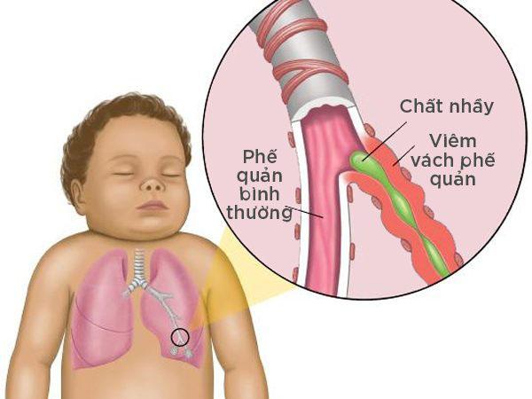 Viêm phế quản có thể dẫn đến hen suyễn