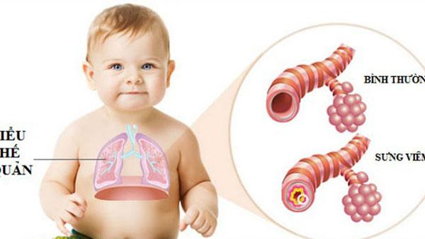 Viêm phế quản ở trẻ sơ sinh là hiện tượng gì?